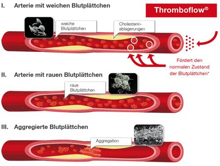 Wirkweise Thromboflow® Dr. Wolz